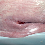 Periwound dermatitis