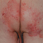 Excoriated skin Buttocks