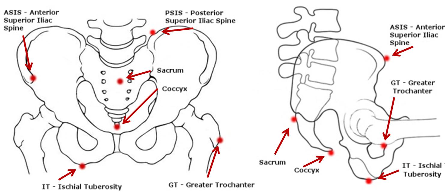 Bony landmarks of the pelvis