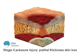 Stage 2 pressure injury partial thickness skin loss