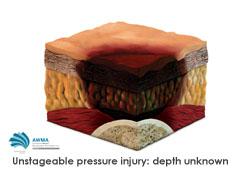 Unstageable pressure injury depth unknown diagram